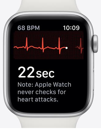 Apple watchs5 ekg srce